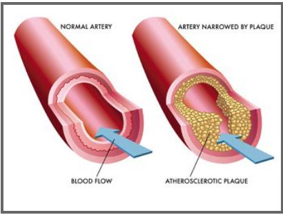 Artéria saudável x artéria com colesterol